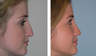 Closed Profile Rhinoplasty and Airway Correction