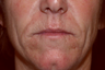 55 year old woman treated for deep wrinkles around her mouth with surgical dermabrasion.