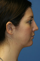 Chin/Neck Liposuction