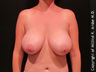 Female with Breast Implant Removal
