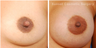 Nipple reduction and reshaping