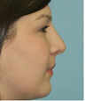 Closed Rhinoplasty