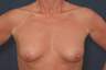 Breast Augmentation Large implants