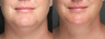 SmartLipo Liposuction of Neck