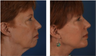 Chin Implant and Facelift Before and Afters