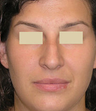 Closed Rhinoplasty Result