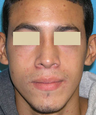 Functional and Cosmetic Septorhinoplasty Result