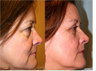 Upper and Lower Blepharoplasty (eyelid lift)