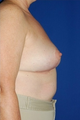 Heavy breast treatment, implant removal and breast lift
