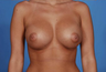 Breast Implants