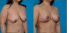 Breast lift, no implants