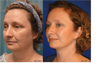 Facelift, Neck liposuction and lift, Endoscopic Browlift, Upper Blepharoplasty (eyelid lift)