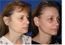 Facelift, Necklift, Browlift Lower Blepharoplasty (eyelid lift), Laser scar/facial resurfacing