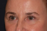 Eyelid Surgery / Fat Transfer