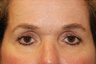 Fat Grafting/Eyelid Surgery