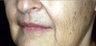 Full Face Erbium Laser Resurfacing