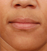 Juvederm - before and after