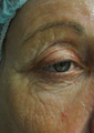 63 Year Old Female Treated for Wrinkles Around the Ey