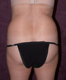 Tummy tuck (abdominoplasty) with liposuction of hips