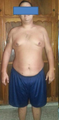 26 Year old male Sever Obesity