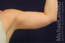 Arm Liposuction