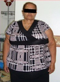 63 Year Old female treated for severe obesity