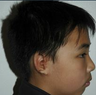 Microtia aka Small Ear by Dr Kasrai, Toronto Female Plastic Surgeon