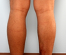 Calf Implants