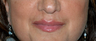 Lip Augmentation