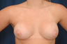 Breast Augmentation - Asymmetry and Constricted Breasts