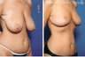 Breast lift (no implants) with nipple reduction