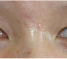 Facial Scar Removal/Treatment