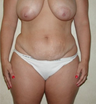 38 Year Old Full Abdominoplasty & Breast Lift