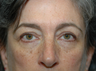 59 year old with lower eyebags treatment via blepharoplasty