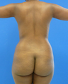 Brazilian Butt Lift - via fat transfer