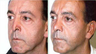 Revision Rhinoplasty Corrects Over-Resection, Tip Asymmetry
