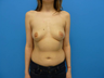 Breast Augmentation of 25 Year Old Female
