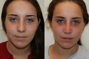 Rhinoplasty Surgery. 6 weeks post-op