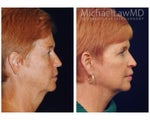 Full Facial Rejuvenation