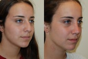 Rhinoplasty Surgery. 6 weeks post-op.