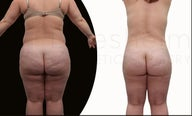 42 year old women body shaping with body jet liposuction