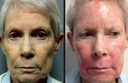70+ Year Old Female Treated for Pigment, Texture and Wrinkles