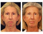 Full Facial Rejuvenation: Necklift