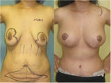 Breast Lift and Augmentation With Natural Fat
