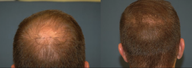 Male treated for Hair Loss