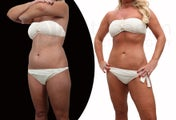 Body-jet liposuction torso and thighs