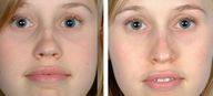 Functional Rhinoplasty