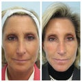 49 Year Old Woman Treated for Volume Loss and Wrinkles with Facelift in a Syringe