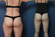 Liposuction- laser assisted (Smart Lipo) of Outer Thighs