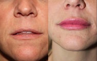 33 Year Old Female Treated with Juvederm in Lips
